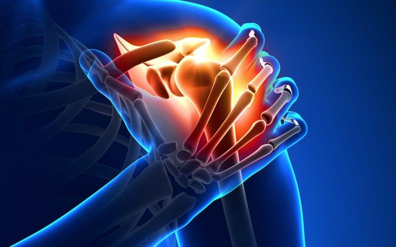 Calcificazioni della spalla, sintomi e cure