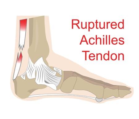 Rottura del tendine di Achille : sintomi, cure e riabilitazione
